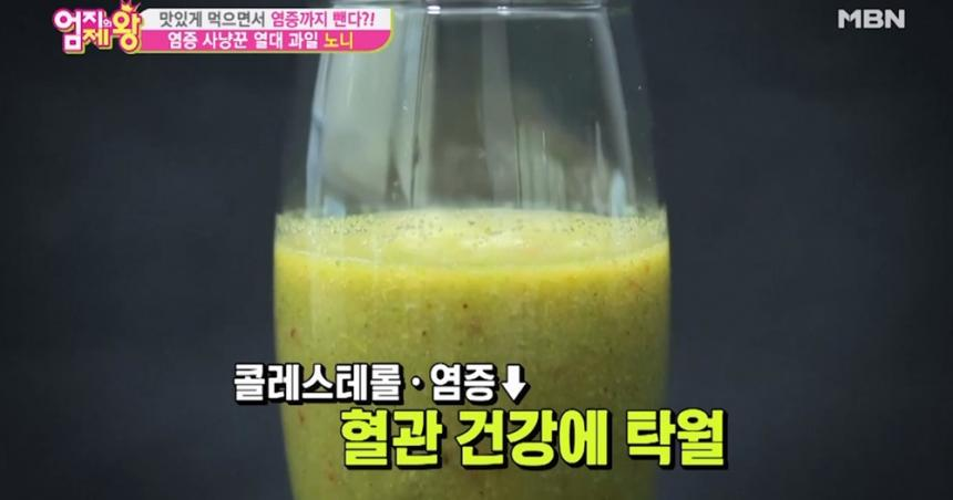 MBN '엄지의 제왕' 방송 화면 캡처