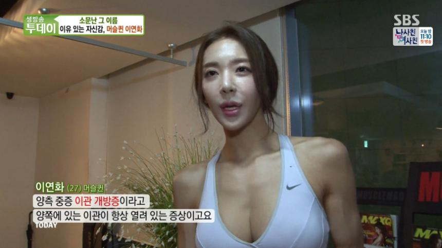 이연화 / SBS '생방송 투데이' 방송 캡처