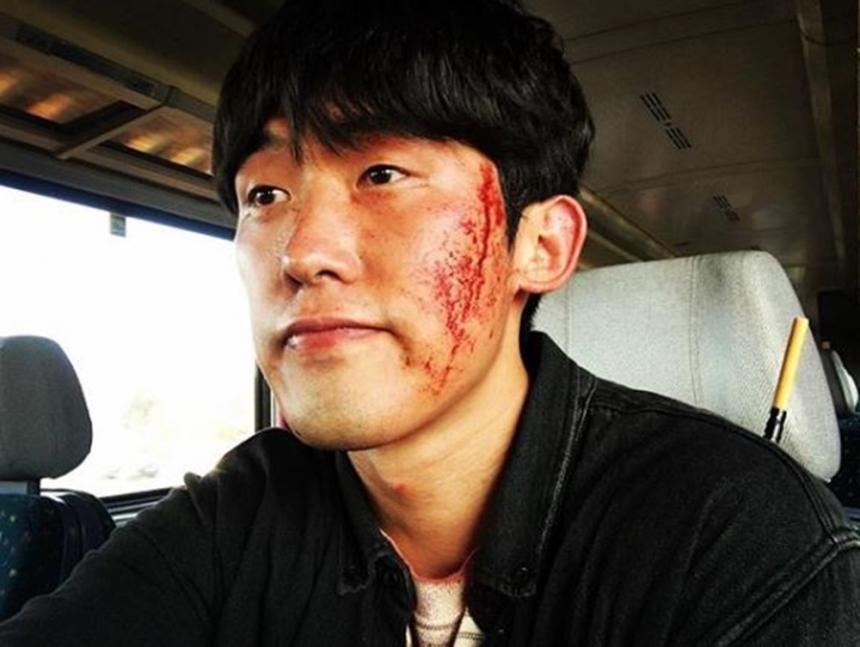 '박열' 민진웅, 얼굴에 상처 가득… '무슨 일?'