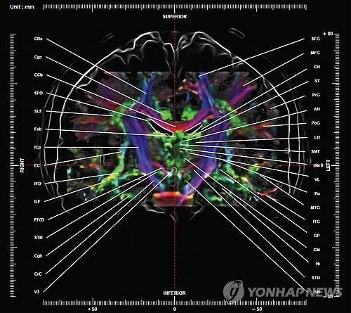 세계 최초로 제작된 '뇌 신경 지도' / [가천대 뇌과학연구소 제공]