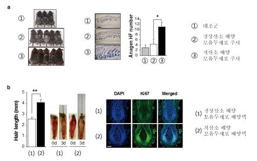(a) 저산소 조건에서 배양한 모유두세포(DPCHyp)를 주사하면 모발의 성장기가 유도했다.(b) 저산소 조건에서 배양한 모유두세포 배양액(Hyp-CM)을 생쥐 콧수염에 처리했더니 모발 길이와 모낭에서 증식하는 세포가 늘어났다. [한국연구재단 제공=연합뉴스]