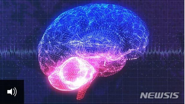 미국 샌프란시스코의 캘리포니아 대학 연구팀이 사람의 마음을 읽고 생각을 말로 바꾸어줄 수 있는 뇌 이식 장치를 개발했다고 영국 BBC 방송이 24일(현지시간) 보도했다. BBC - 뉴시스