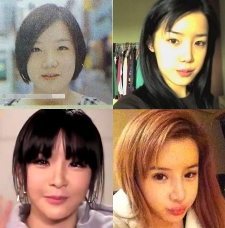 박봄 얼굴 변천사 / 온라인 커뮤니티