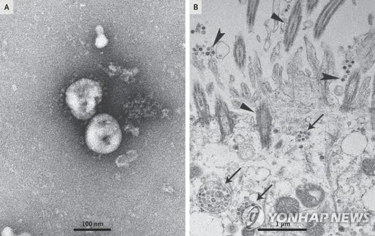 배양된 신종 코로나바이러스를 광학현미경으로 관찰한 모습 / [NEJM 논문 발췌]